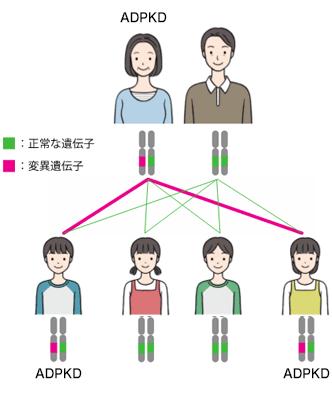 常染色体優性遺伝